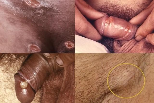 fotos-do-cancro-mole-1-1-640-427.jpg