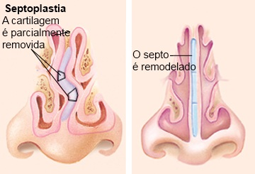 Septoplastia_.jpg
