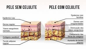 celulite.jpg